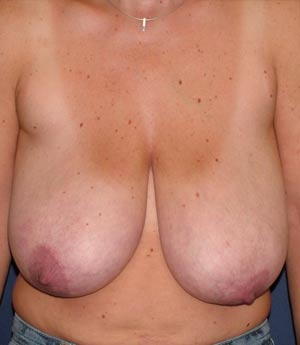 adenosis mammae, knoten in der brust kommt und geht